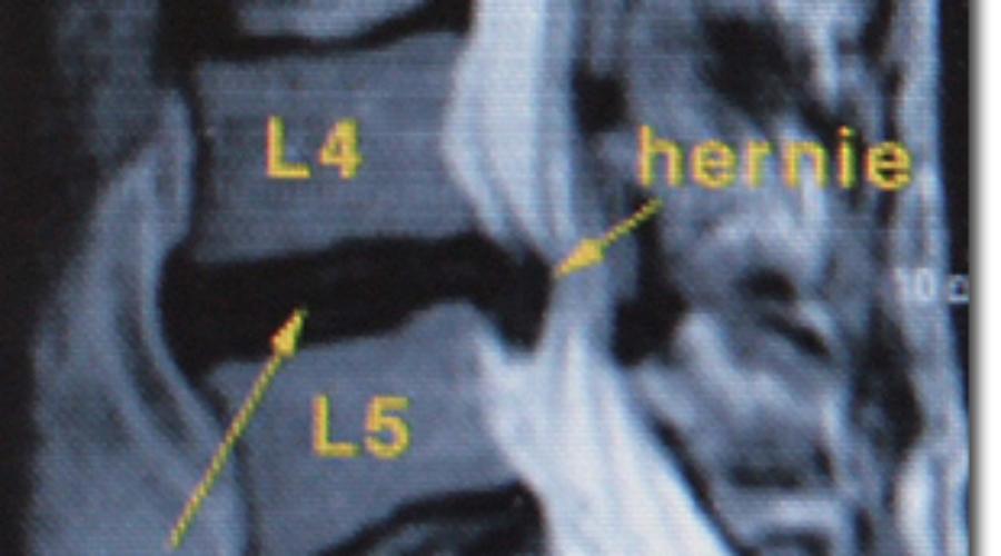 Ventouse : hernie discale, lumbago & sciatique