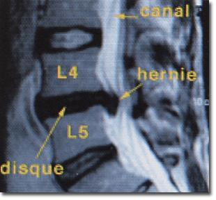 hernie discale, lumbago & sciatique en ventouse thérapie énergétique